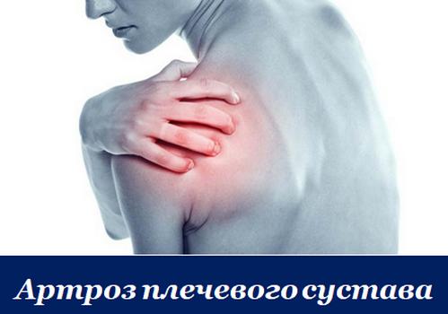 Артроз плечевого сустава. Симптомы и лечение