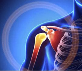 Деформирующий артроз плечевого сустава. Симптомы и лечение