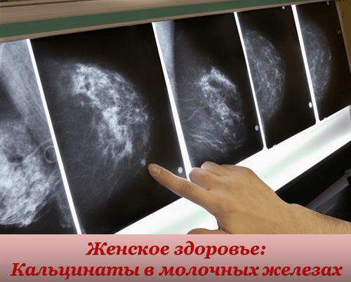 Кальцинаты в молочных железах. Причины. Симптомы