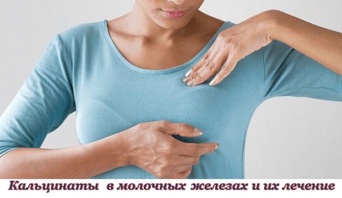 Кальцинаты в молочных железах. Лечение