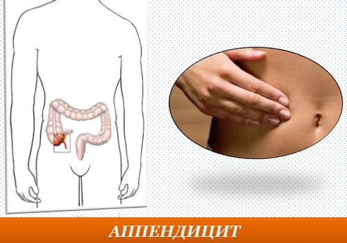 Аппендицит. Симптомы у взрослых и детей. Признаки болезни