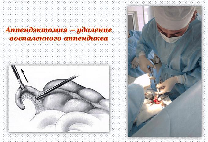 Операция аппендэктомия