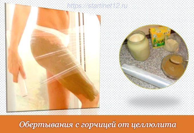 Обертывания с горчицей от целлюлита