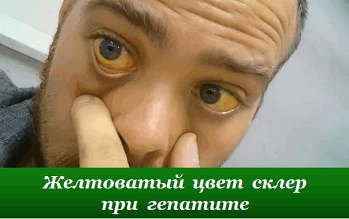 Желтоватый цвет склер или иктеричность склер